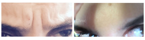 Frown Line Correction with Wrinkle Relaxing Injection