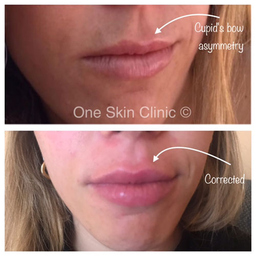 Lip enhancement with 1ml dermal filler