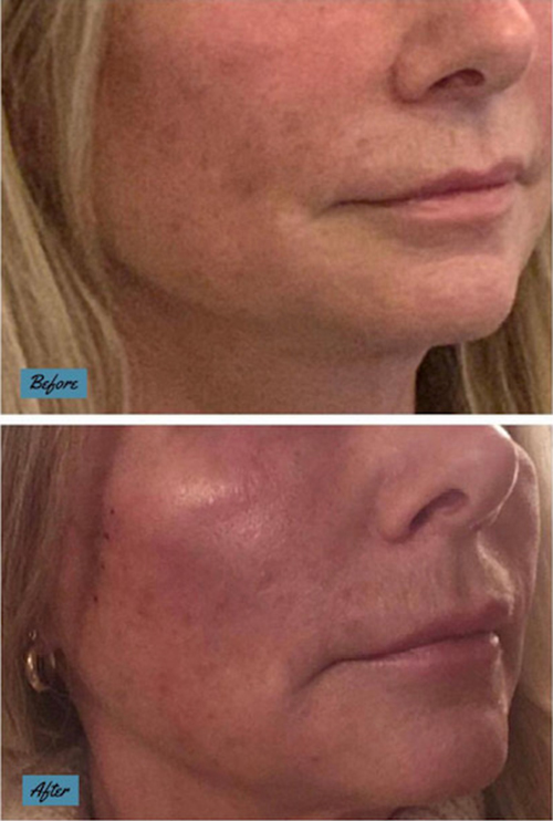 Silhouette soft thread lift for skin tightening and lifting